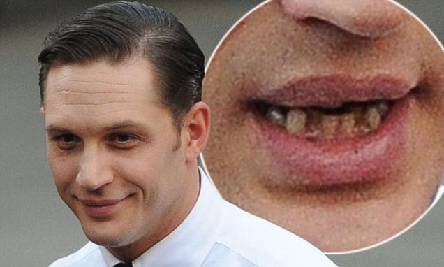Tom hardy teeth