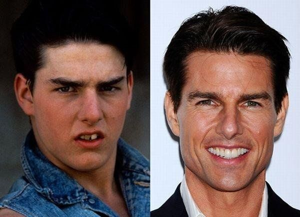 Young Tom Cruise Versus His Current Age
