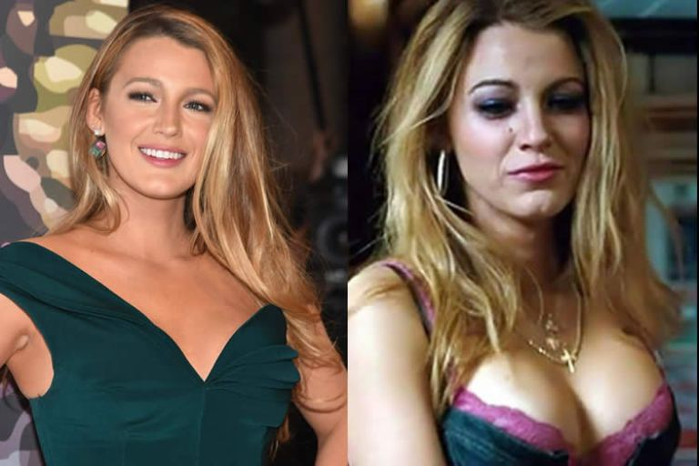 Blake Lively Nose Job: How She Changed After Plastic Surgery